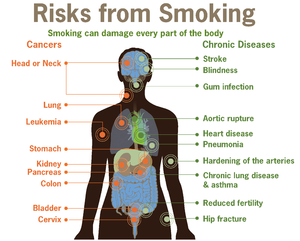 20130424XD-GooglImag-Risks_form_smoking-smoking_can_damage_every_part_of_the_body