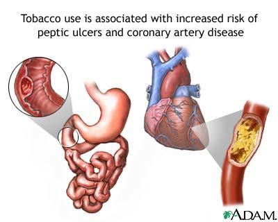 20130424XD-GooglImag-tobacco-risks